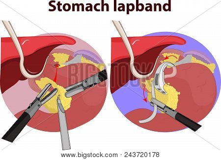 Vector Illustration Of Stomach Gastric Band Graphic