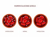 Human glucose levels hyperglycemia, normal, hypoglycemia. Hematology vector diagram with blood vessel, erythrocytes and sugar. Illustration of diabetic illness, disease diagnostic poster