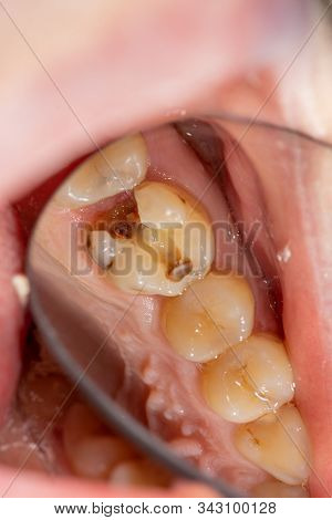 Treatment Of The Roots Of The Tooth. Sealing And Cleaning A Carious Human Tooth Close-up Of A Macro.