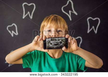 The Boy Shows His X-ray Image Of His Teeth With An Abnormally Strange Extra Tooth. Childrens Dentist