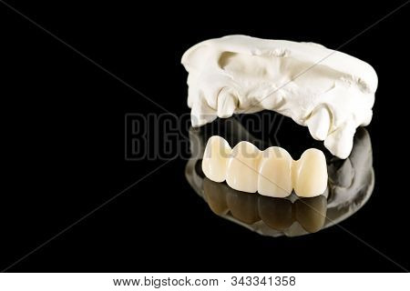 Closeup / Prosthodontics Or Prosthetic / Tooth Crown And Bridge Implant Dentistry Equipment And Mode