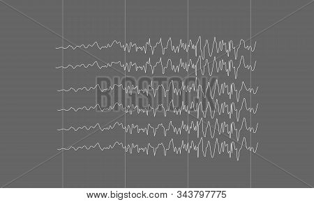 Illustration Of Spike Epileptic Seizure Brain Waves On Black Background.