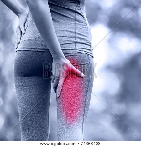 Hamstring sprain or cramps. Running sports injury with female runner. Closeup of woman back thigh.