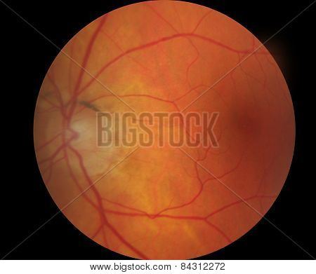 Medical Fundus Photo Of Macula