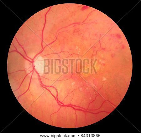 Medical Fundus Photo Of Retinopathy Hemmorhage