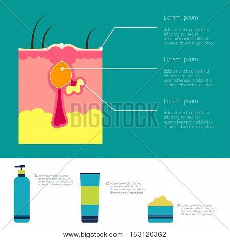 Skin problems Vector illustration Infographic of skin problems Structure of the pimple Cosmetics struggle with acne and skin care