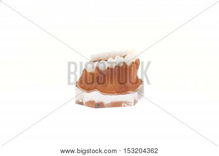 The jaw model with implanted dentures. Isolated