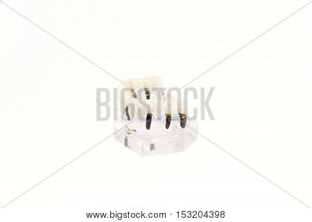 glass jaw model with implanted dentures. Isolated