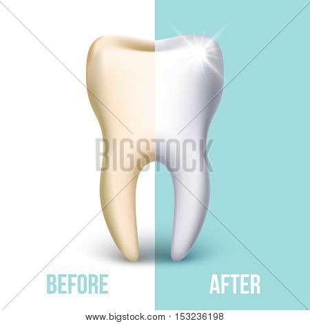 Dental veneer, teeth whitening vector concept. Stomatology and healthcare, white tooth illustration