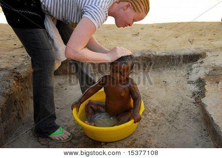 african albino