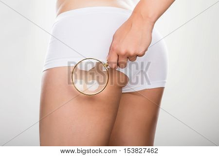 Woman Checking Cellulite On Her Buttock With Magnifying Glass