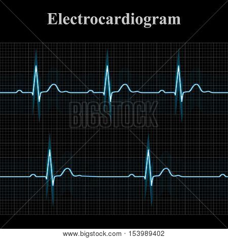 Normal and bradycardial ekg charts 2d medical monitor vector illustration on dark grid background eps 8