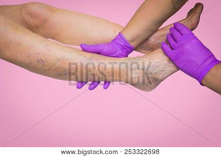Lower Limb Vascular Examination Because Suspect Of Venous Insufficiency. The Female Legs On Pink Bac