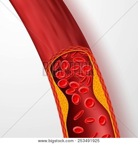 Blocked Blood Vessel, Artery With Cholesterol Thrombus. 3d Vein With Clot Vector Illustration. Medic