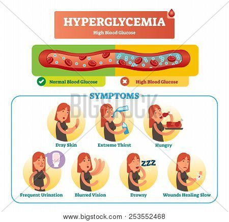 Hyperglycemia Vector Illustration Collection Set. Isolated And Labeled Symptom, Diagnosis And Signs