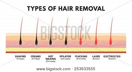 Hair Removal Concept. Shaving, Depilation Cream, Waxing, Epilator, Plucking, Laser Hair Removal And