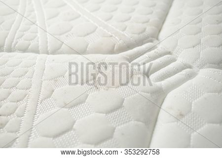 Fungus Stains On A Bedding. Dirty Mattress.