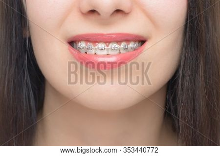 Young Woman Smile With Dental Braces. Brackets On The Teeth After Whitening. Self-ligating Brackets