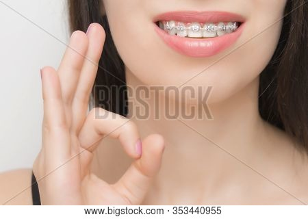 Dental Braces In Happy Womans Mouths Who Shows Ok. Brackets On The Teeth After Whitening. Self-ligat
