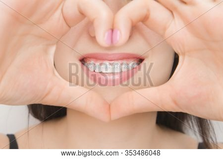 Dental Braces In Happy Womans Mouths Through The Heart. Brackets On The Teeth After Whitening. Self-