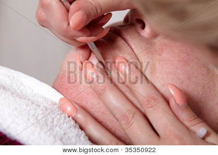 Eliminate Skin Blemishes
