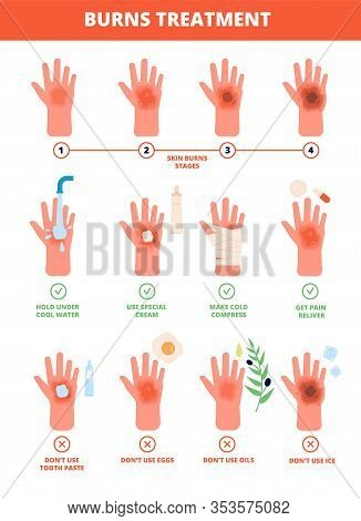 Skin Burn. Burned Hand Treating, Protection Burns. First Aid And Treatment, Stages Of Burning. Flat