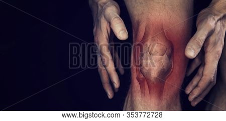 Knee Pain. Male Leg With Bone Joint Inflammation Illustration On Black Background. Copy Space