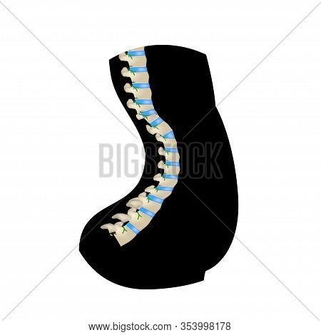 The Position Of The Spine With Lordosis. Black And White Silhouette Icon. Spinal Curvature, Kyphosis