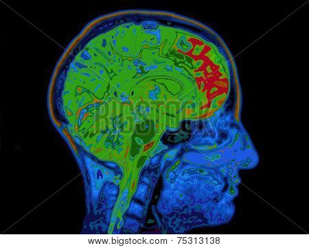 Mri Image Of Head Showing Brain