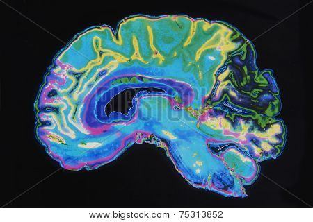 Mri Image Brain On Black Background