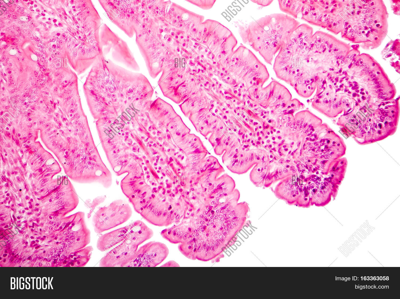 Villi Small Intestine Image Photo Free Trial Bigstock
