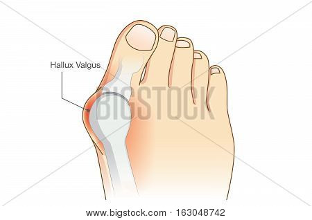 Abnormal of foot shape from deformity joint connecting the big toe. Problem of foot form wearing high heel make.