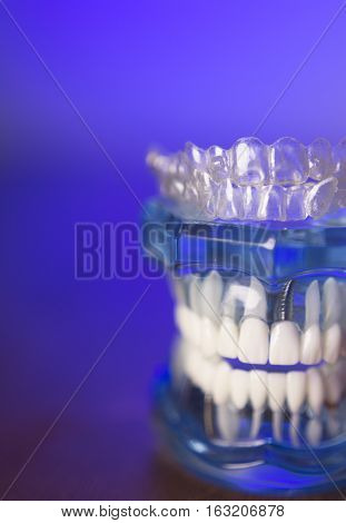 Transparent dental orthodontics for adults and children
