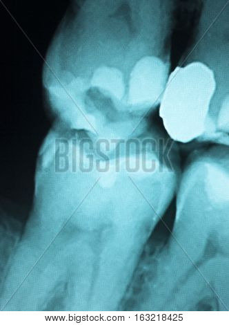 Tooth Filling Dental Xray