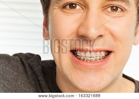 Portrait of young man with metal and ceramic dental braces on teeth