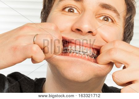 Close-up portrait of cute young man with orthodontic braces