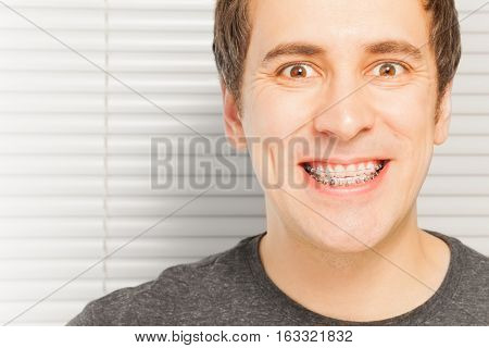 Close-up portrait of happy young man with dental braces