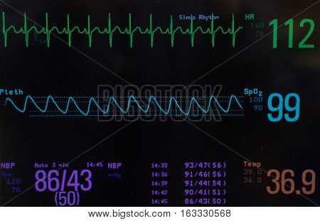 Close up of a monitor with black screen showing the EKG or electrocardiogram with normal sinus rhythm (green lines),  oxygen saturation (blue line),  blood pressure and temperature of a pediatric patient during surge