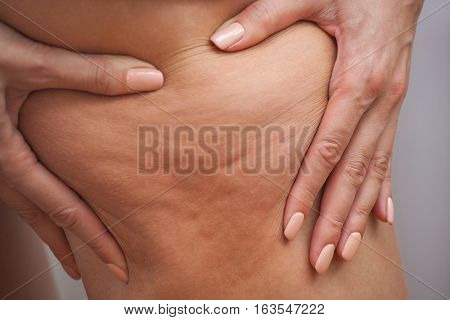 Girl shows holding and pushing the skin of the legs cellulite orange peel. Treatment and disposal of excess weight the deposition of subcutaneous fat tissue