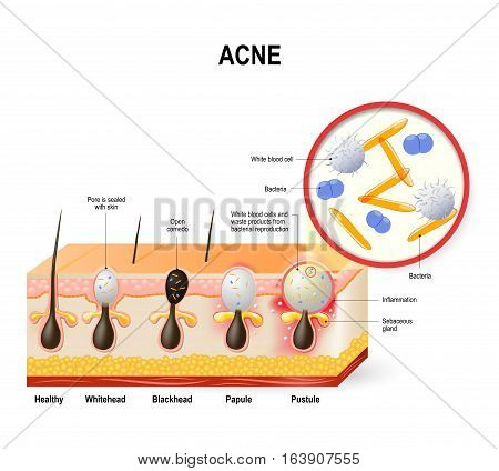 Acne vulgaris or pimple. The sebum and dead skin cells in the clogged pore promotes the growth of a certain bacteria. This leads to the redness and inflammation associated with pimples. skin disease
