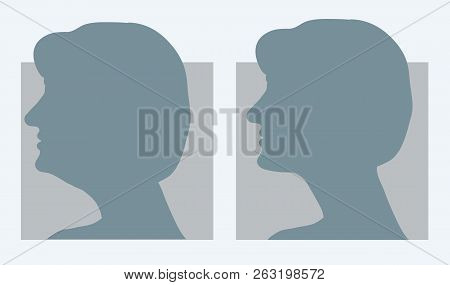 Reduce Double Chin. Get Rid Of Face And Neck Fat Concept. Vector Illustration For Beauty Or Plastic