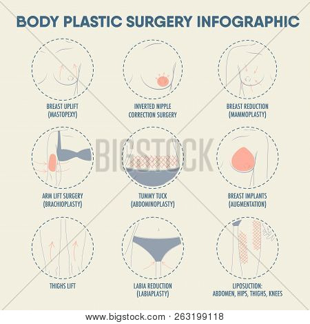 Body Plastic Surgery Infographic For Posters And Web. Breast Uplift, Reduction, Implants, Thighs Lif