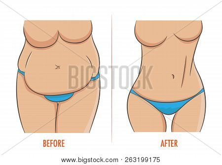 Thick And Thin, Overweight Problems Concept. Part Of Female Torso With Fat And Lean Abdomen And Hips