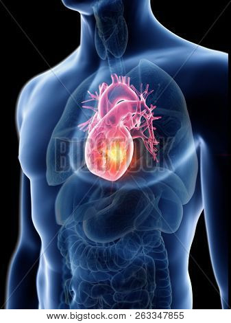 3d rendered medically accurate illustration of a mans heart tumor