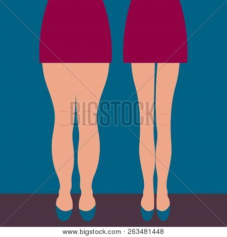 Female Thick And Slender Legs Before And After Weight Loss, Beautiful Body, Liposuction Legs, Legs M