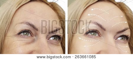 woman wrinkles before and after procedures regeneration, crease poster