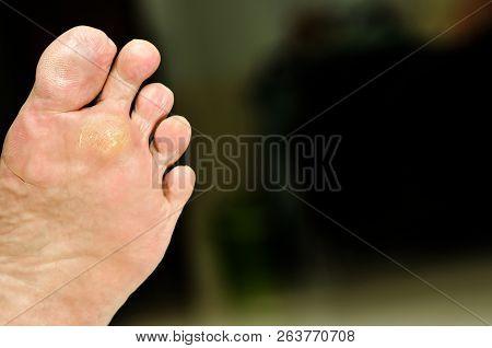 wart under foot can treatment by salicylic acid, Wart verrucas plantar. Fasciitis Wart on foot. Decease on foot skin. poster