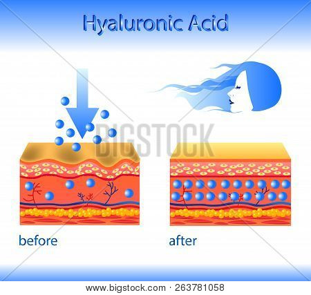 Vector illustration with cosmetic filler or Hyaluronic acid on light background poster