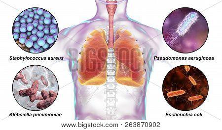 Human Respiratory Pathogens, Bacteria That Cause Nosocomial Pneumonia, 3d Illustration. Staphylococc