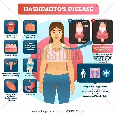 Hashimotos Thyroiditis Vector Illustration. Labeled Medical Scheme With Autoimmune Disorder Diagnosi